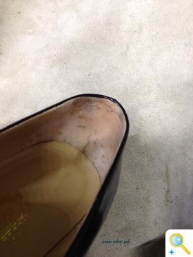 かかとの靴擦れ